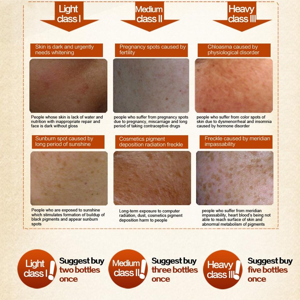 Lanthome Dark Spot Corrector Skin Whitening Cream - Blemish Removal Serum  Reduces Age Spots Lighten Fades Freckles